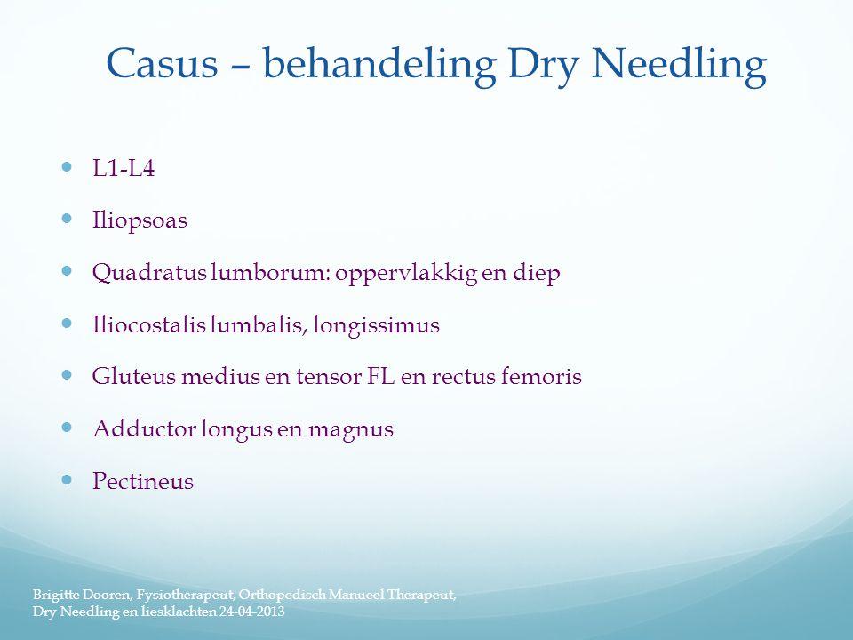 Casus – behandeling Dry Needling  L1-L4  Iliopsoas  Quadratus lumborum: oppervlakkig en diep  Iliocostalis lumbalis, longissimus  Gluteus medius