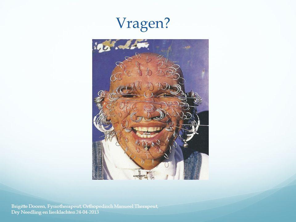 Vragen? Brigitte Dooren, Fysiotherapeut, Orthopedisch Manueel Therapeut, Dry Needling en liesklachten 24-04-2013