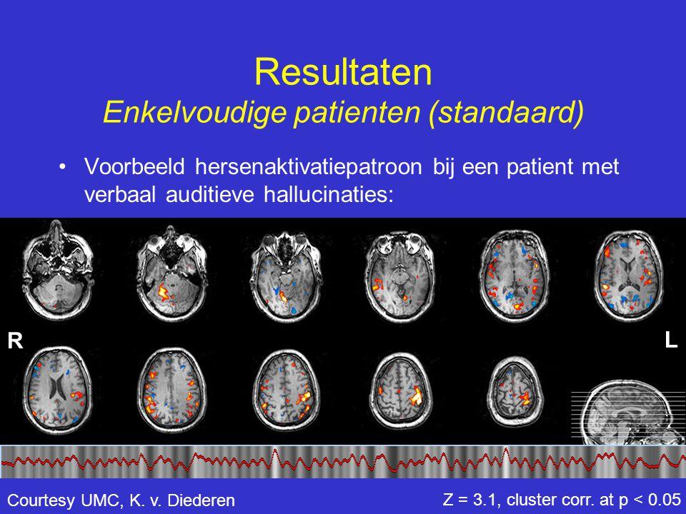 Resultaten Enkelvoudige patienten (standaard) •Voorbeeld hersenaktivatiepatroon bij een patient met verbaal auditieve hallucinaties: Z = 3.1, cluster