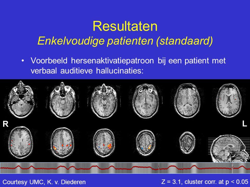 •Voorbeeld hersenaktivatiepatroon bij een patient met verbaal auditieve hallucinaties: Resultaten Enkelvoudige patienten (standaard) Z = 3.1, cluster
