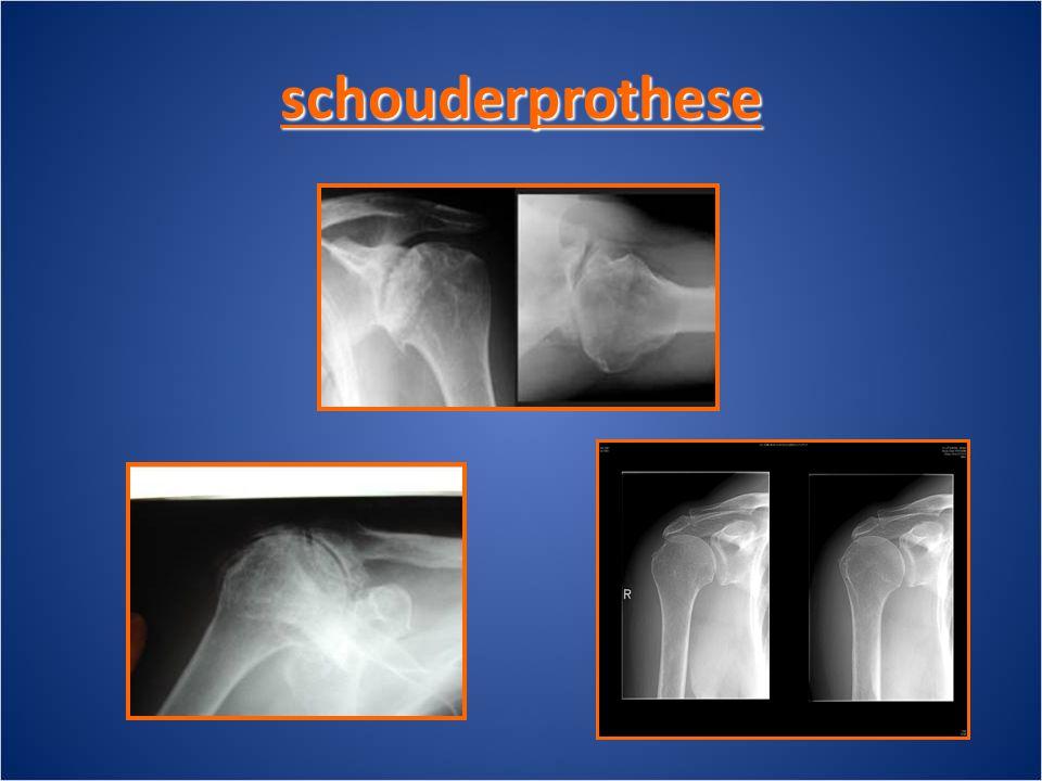 schouderprothese