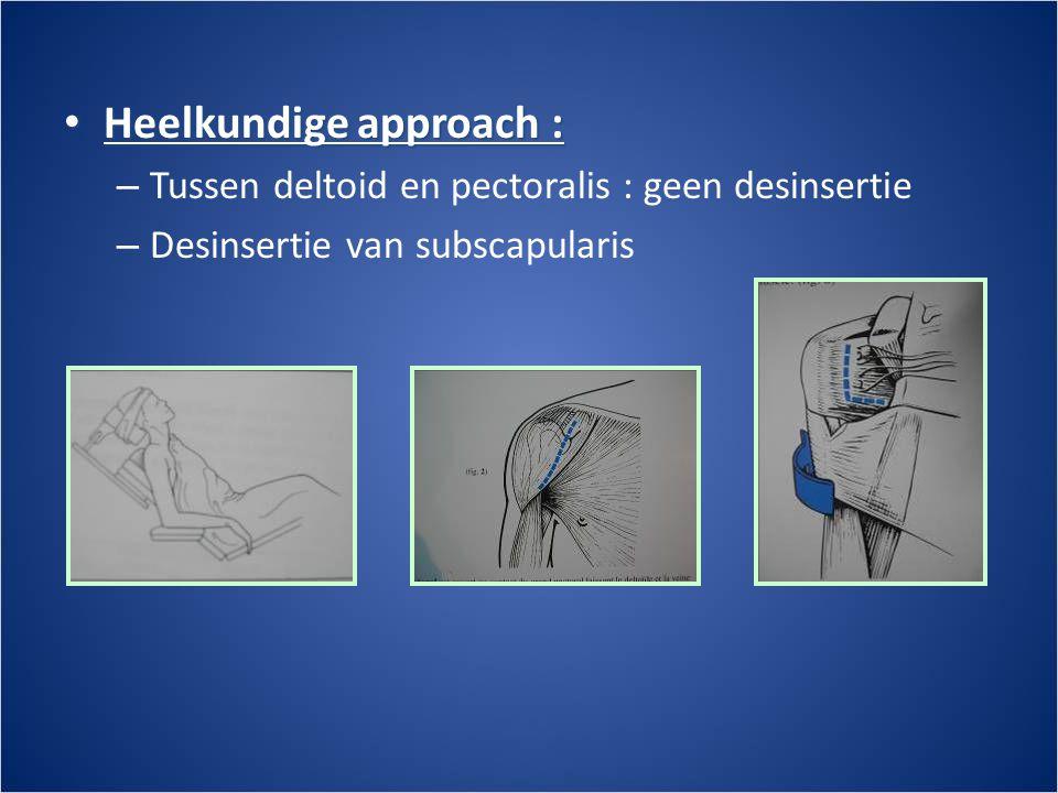 • Heelkundige approach : – Tussen deltoid en pectoralis : geen desinsertie – Desinsertie van subscapularis