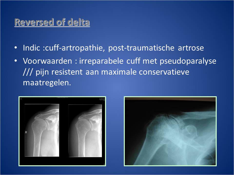 Reversed of delta • Indic :cuff-artropathie, post-traumatische artrose • Voorwaarden : irreparabele cuff met pseudoparalyse /// pijn resistent aan maximale conservatieve maatregelen.