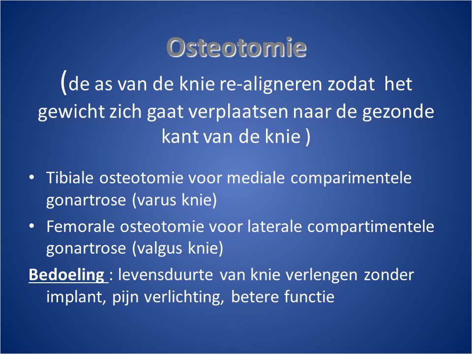 Osteotomie Osteotomie ( de as van de knie re-aligneren zodat het gewicht zich gaat verplaatsen naar de gezonde kant van de knie ) • Tibiale osteotomie voor mediale comparimentele gonartrose (varus knie) • Femorale osteotomie voor laterale compartimentele gonartrose (valgus knie) Bedoeling : levensduurte van knie verlengen zonder implant, pijn verlichting, betere functie