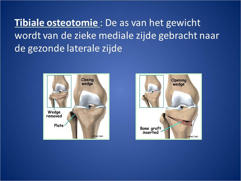Tibiale osteotomie Tibiale osteotomie : De as van het gewicht wordt van de zieke mediale zijde gebracht naar de gezonde laterale zijde