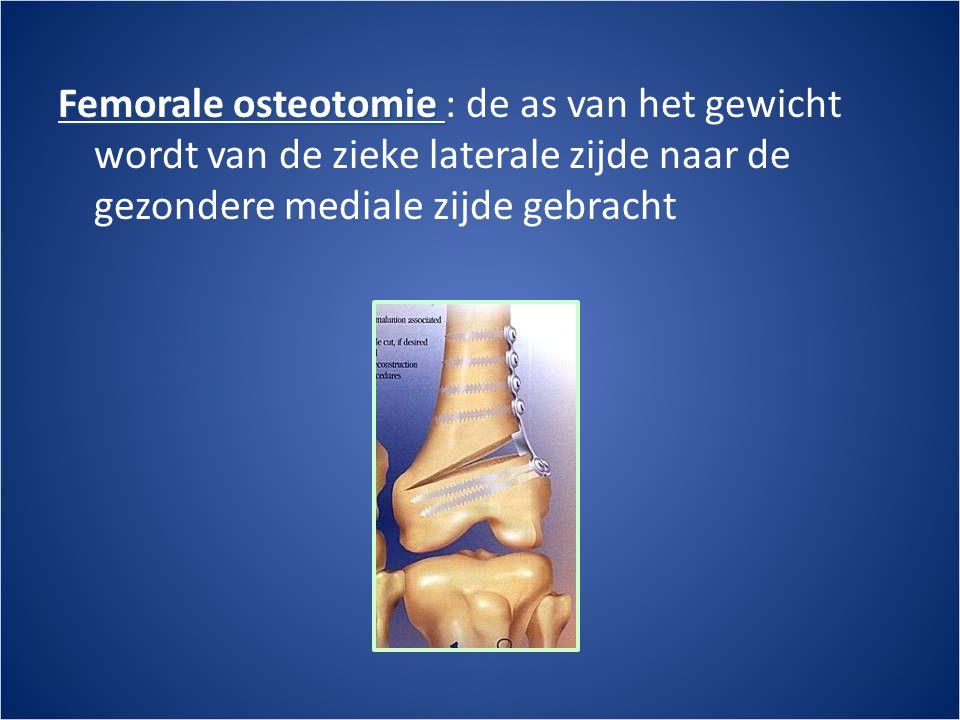 Femorale osteotomie Femorale osteotomie : de as van het gewicht wordt van de zieke laterale zijde naar de gezondere mediale zijde gebracht