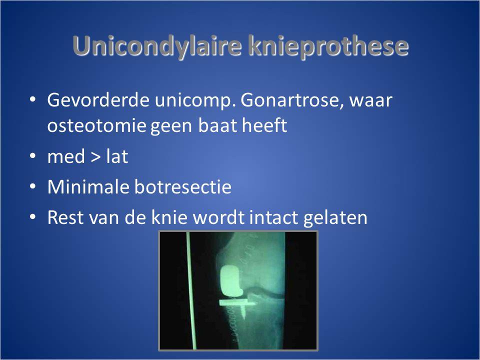 Unicondylaire knieprothese • Gevorderde unicomp.
