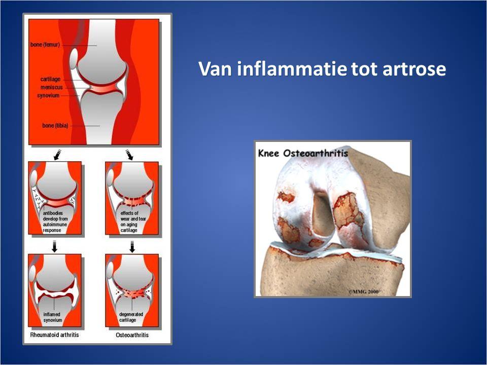 Van inflammatie tot artrose