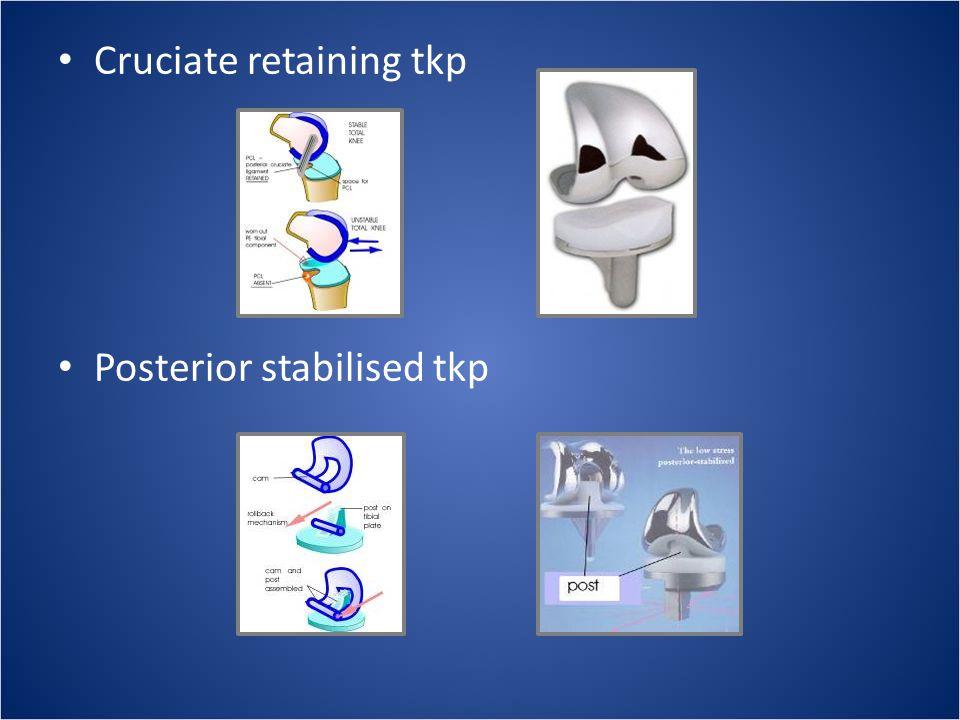• Cruciate retaining tkp • Posterior stabilised tkp