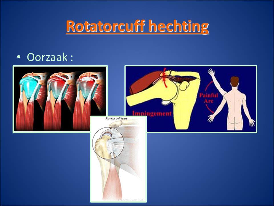 Rotatorcuff hechting • Oorzaak :