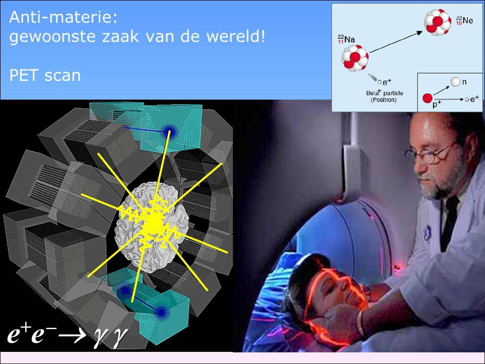 Anti-materie: gewoonste zaak van de wereld! PET scan e+e  e+e  e+e  e+e  
