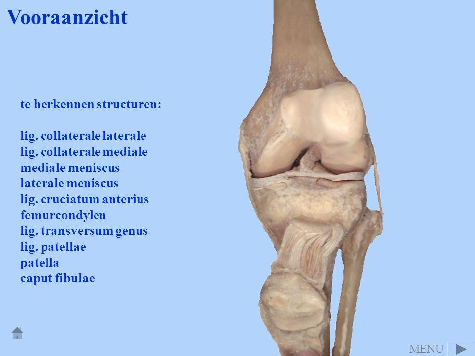 te herkennen structuren: lig. collaterale laterale lig. collaterale mediale mediale meniscus laterale meniscus lig. cruciatum anterius femurcondylen l