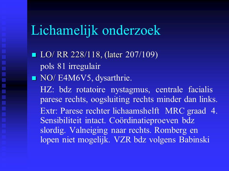 Lichamelijk onderzoek  LO/ RR 228/118, (later  LO/ RR 228/118, (later 207/109) pols 81 irregulair  NO/  NO/ E4M6V5, dysarthrie. HZ: bdz rotatoire