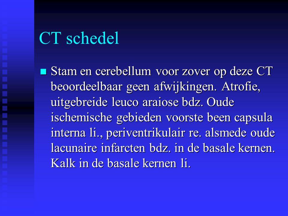 Beloop  Geen trombolyse ivm leuco-araiose op CT schedel en hoge bloeddruk.