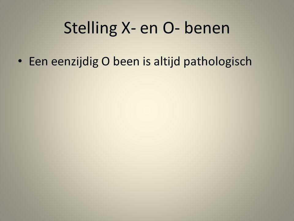 Stelling X- en O- benen • Een eenzijdig O been is altijd pathologisch