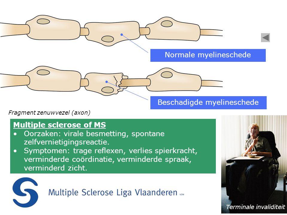 Fragment zenuwvezel (axon) Normale myelineschede Beschadigde myelineschede Terminale invaliditeit Multiple sclerose of MS •Oorzaken: virale besmetting