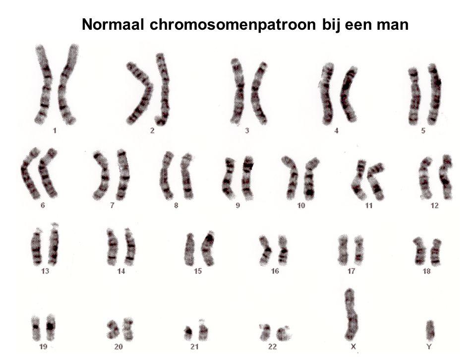 Normaal chromosomenpatroon bij een man