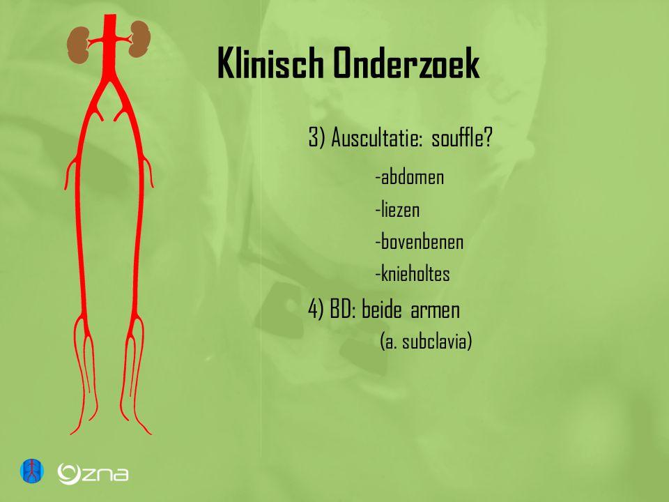 Klinisch Onderzoek 3) Auscultatie: souffle? -abdomen -liezen -bovenbenen -knieholtes 4) BD: beide armen (a. subclavia)
