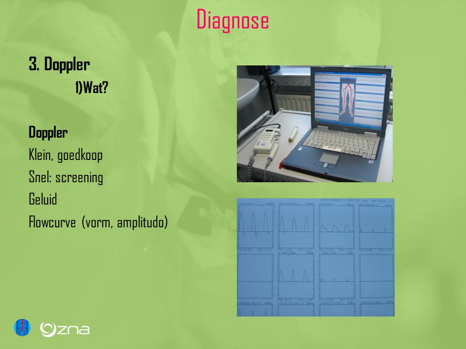Diagnose 3. Doppler 1)Wat? Doppler Klein, goedkoop Snel: screening Geluid Flowcurve (vorm, amplitudo)