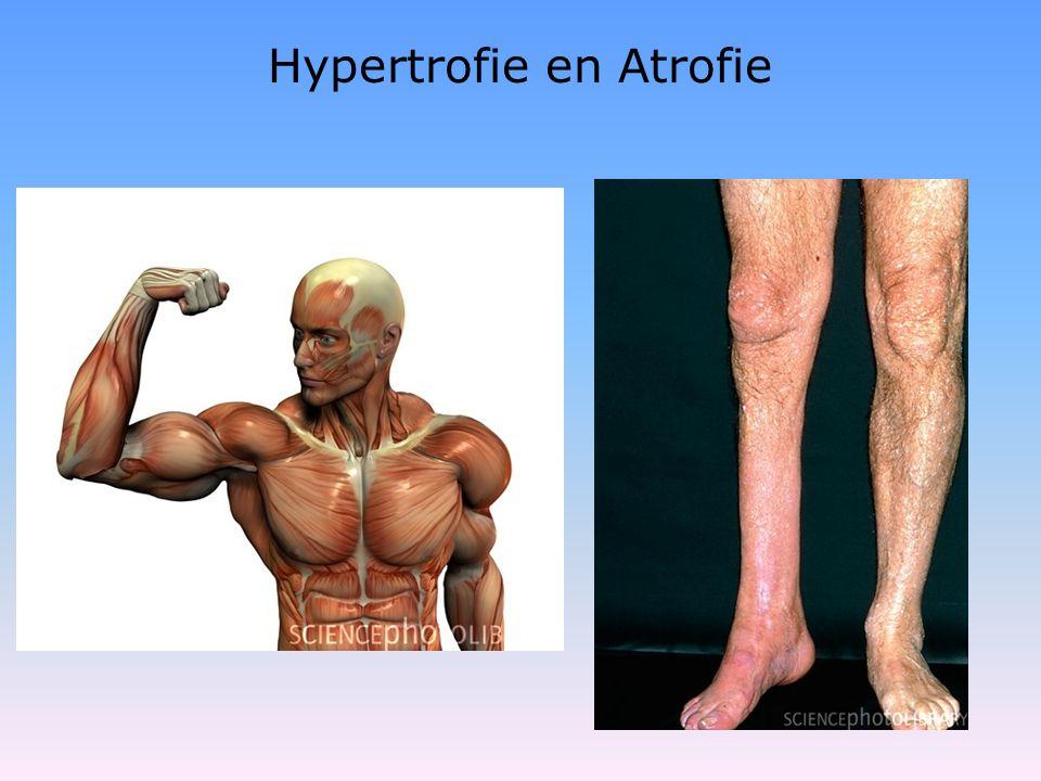 Hypertrofie en Atrofie