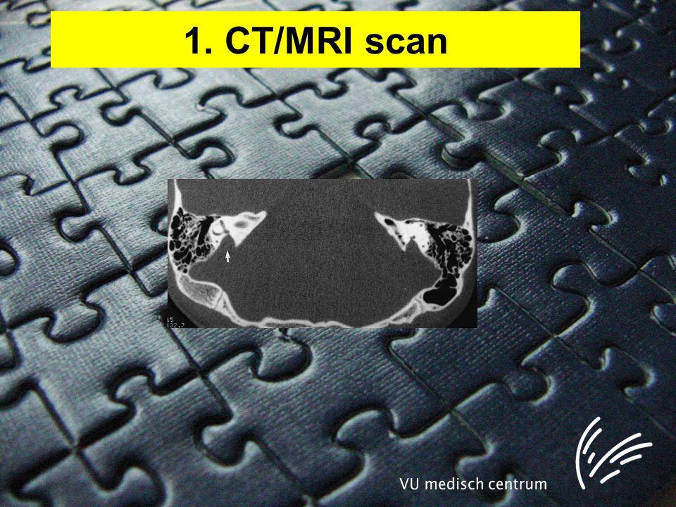 1. CT/MRI scan