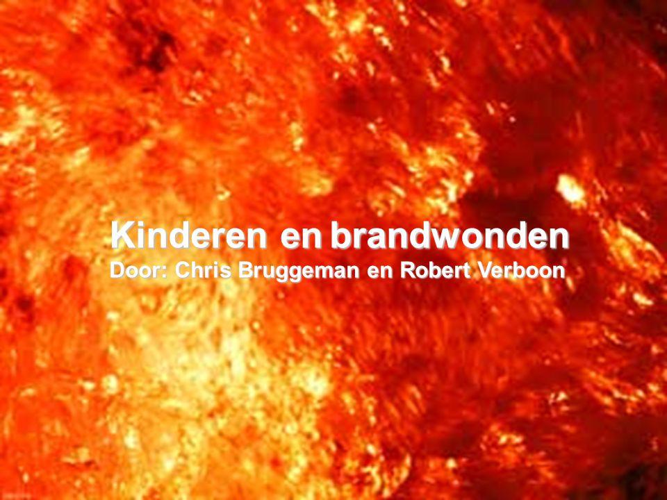 Kinderen en brandwonden Door: Chris Bruggeman en Robert Verboon