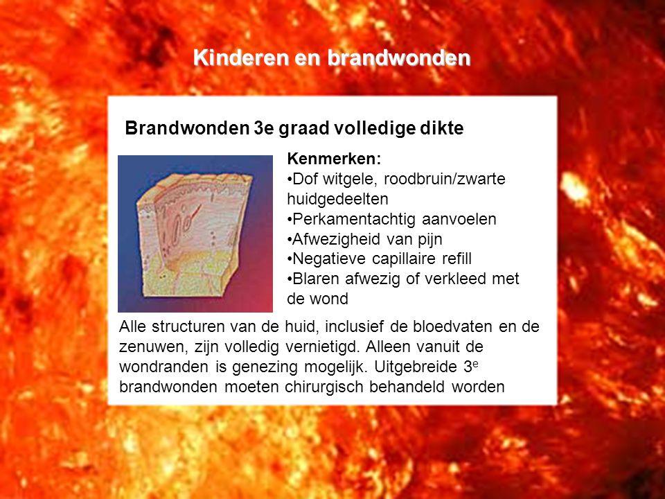 Kinderen en brandwonden Brandwonden 4e graad Bij een vierde graad brandwond reikt de necrose tot voorbij de subcutus, tot op de fascie of nog dieper.