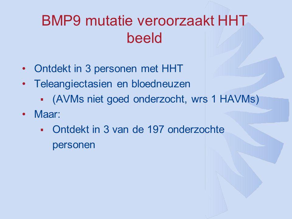 BMP9 mutatie veroorzaakt HHT beeld •Ontdekt in 3 personen met HHT •Teleangiectasien en bloedneuzen  (AVMs niet goed onderzocht, wrs 1 HAVMs) •Maar:  Ontdekt in 3 van de 197 onderzochte personen