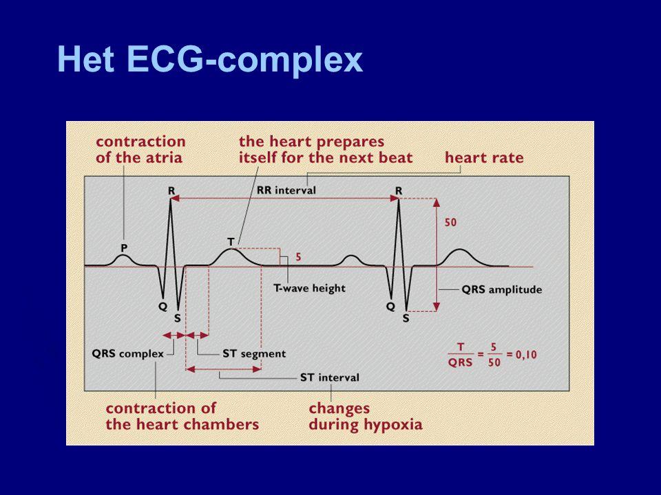 Ontwikkeling nieuwe techniek Alternatief voor MBO ► Foetaal ECG (STAN ® - monitor)  Continu signaal via schedelelectrode  Gebaseerd op veranderingen in het ST- segment, die geassocieerd zijn met hypoxie  Automatische beoordeling van het ST-segment  Klinische richtlijnen wanneer te intervenieren