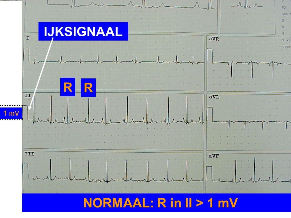 1 mV NORMAAL: R in II > 1 mV R R IJKSIGNAAL