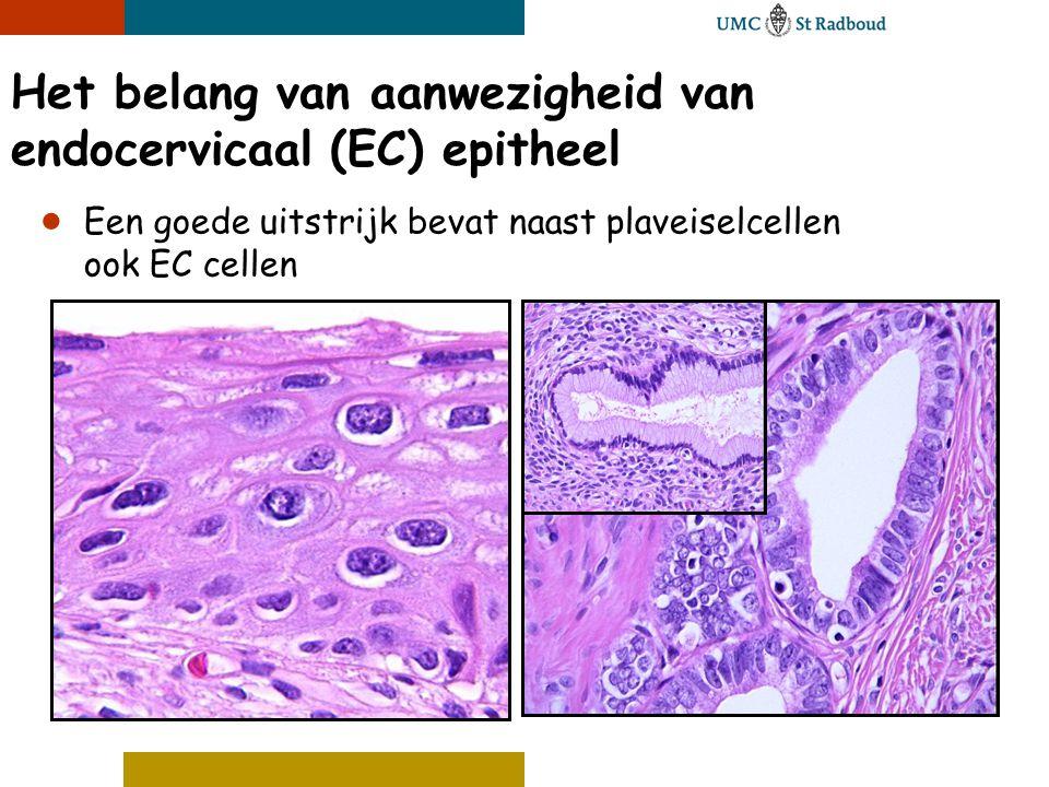 Het belang van aanwezigheid van endocervicaal (EC) epitheel ● Een goede uitstrijk bevat naast plaveiselcellen ook EC cellen
