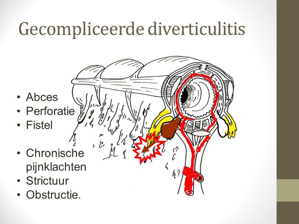 Gecompliceerde diverticulitis •Abces •Perforatie •Fistel •Chronische pijnklachten •Strictuur •Obstructie.