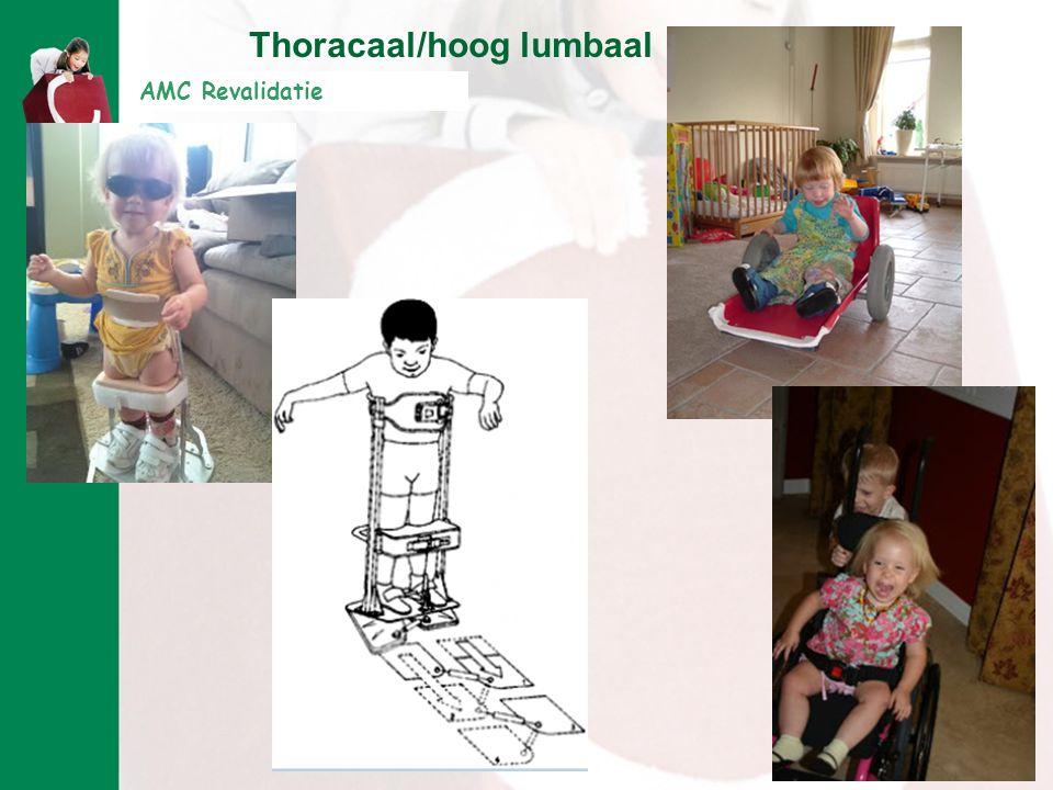 AMC Revalidatie Thoracaal/hoog lumbaal