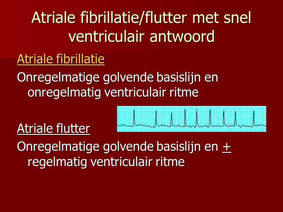 Atriale fibrillatie/flutter met snel ventriculair antwoord Atriale fibrillatie Onregelmatige golvende basislijn en onregelmatig ventriculair ritme Atr