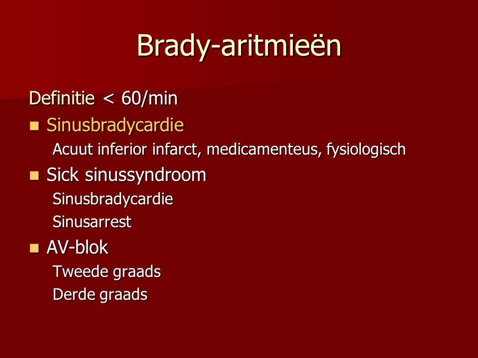 Brady-aritmieën Definitie < 60/min  Sinusbradycardie Acuut inferior infarct, medicamenteus, fysiologisch  Sick sinussyndroom SinusbradycardieSinusar
