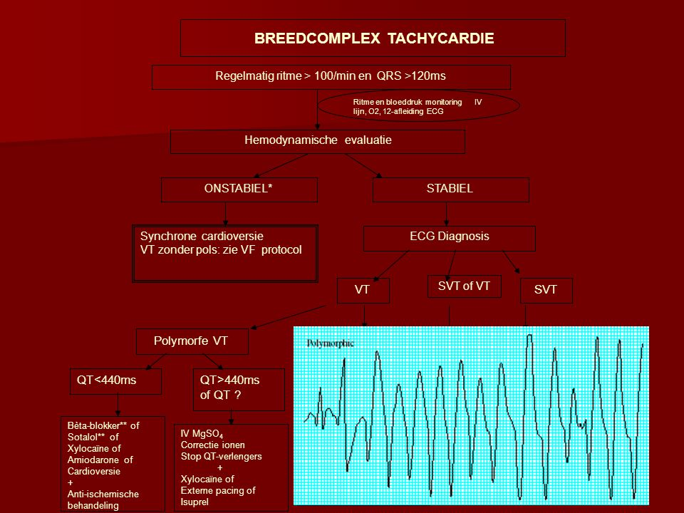 Regelmatig ritme > 100/min en QRS >120ms Ritme en bloeddruk monitoring IV lijn, O2, 12-afleiding ECG Hemodynamische evaluatie ONSTABIEL*STABIEL Synchr