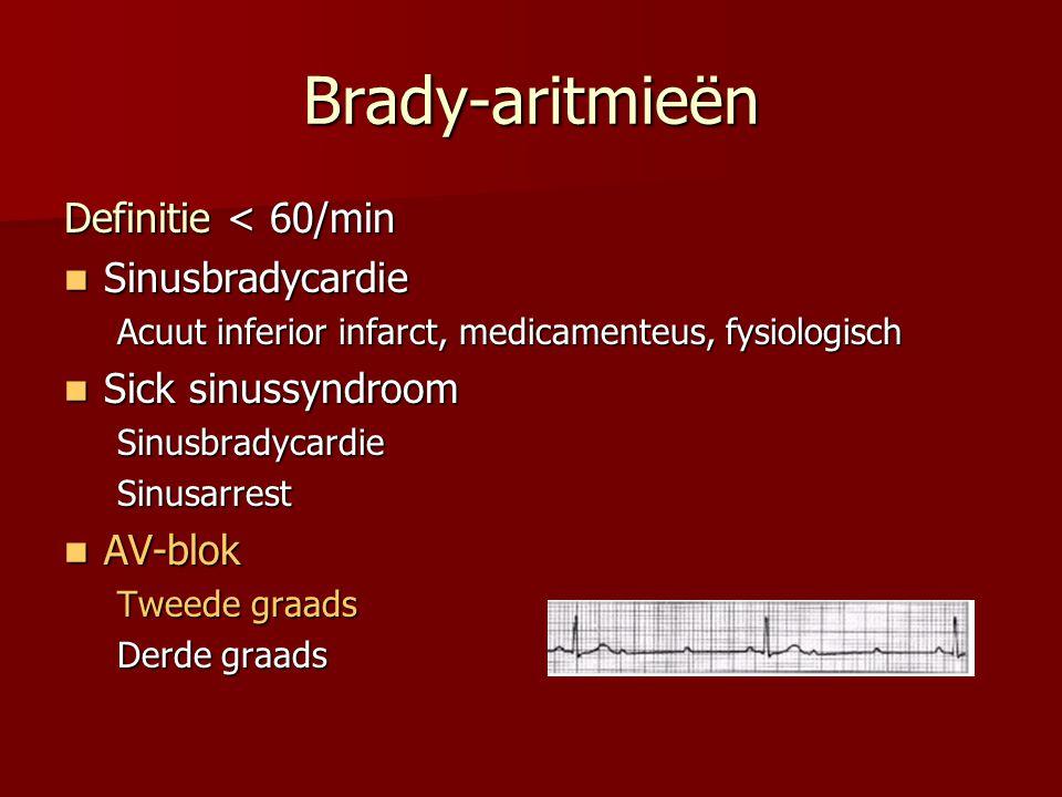 Brady-aritmieën Definitie < 60/min  Sinusbradycardie Acuut inferior infarct, medicamenteus, fysiologisch  Sick sinussyndroom SinusbradycardieSinusarrest  AV-blok Tweede graads Derde graads