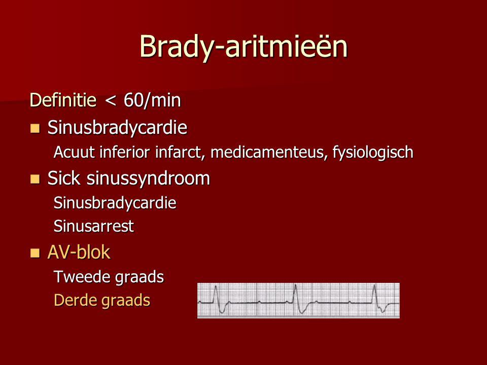 Pols lager dan 60/min met symptomen Hemodynamische evaluatie ECG, bloeddrukmonitoring IV lijn O2 12-afleidingen ECG zo snel mogelijk Zoek en behandel gericht: AMI Ionenstoornisse n Intoxicatie Hypothermie STABIEL ONSTABIEL* Atropine 0,5mg tot 3mg IV en/of Externe transthoracale pacemaker Eventueel:Dopamine: 2-20μg/kg/min Adrenaline: 2-10 μg/min Observeer + monitoring BELEID BIJ SYMPTOMATISCHE BRADYCARDIE