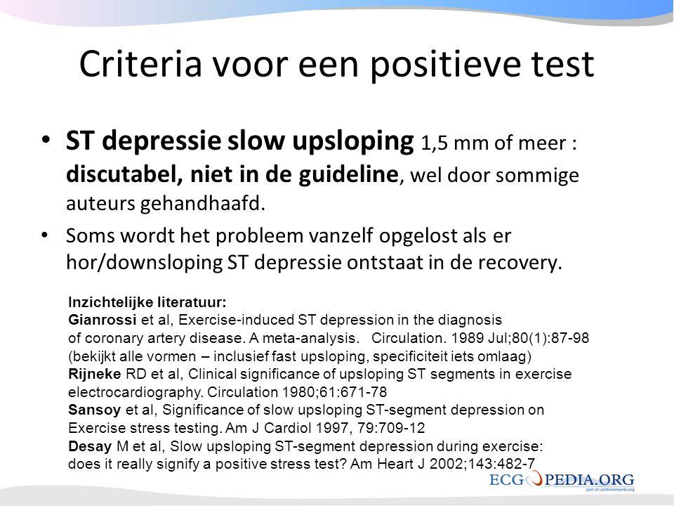 Criteria voor een positieve test • ST depressie slow upsloping 1,5 mm of meer : discutabel, niet in de guideline, wel door sommige auteurs gehandhaafd