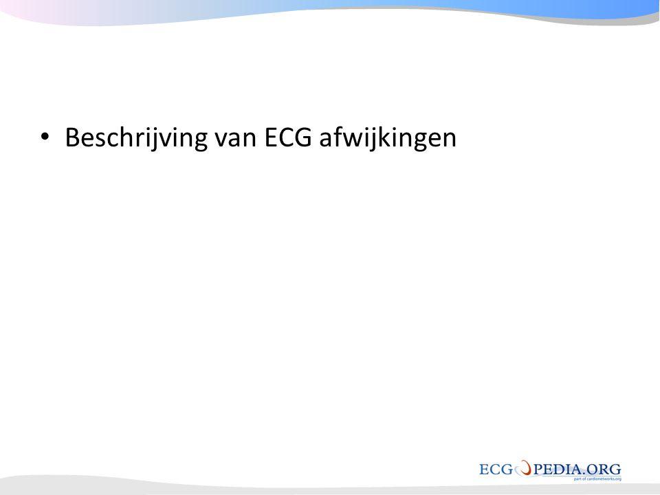 • Beschrijving van ECG afwijkingen