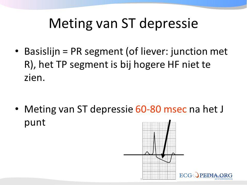 Meting van ST depressie • Basislijn = PR segment (of liever: junction met R), het TP segment is bij hogere HF niet te zien. • Meting van ST depressie