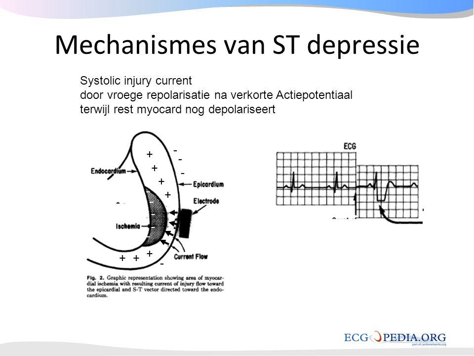 Mechanismes van ST depressie Systolic injury current door vroege repolarisatie na verkorte Actiepotentiaal terwijl rest myocard nog depolariseert - -