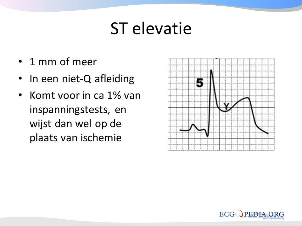 ST elevatie • 1 mm of meer • In een niet-Q afleiding • Komt voor in ca 1% van inspanningstests, en wijst dan wel op de plaats van ischemie