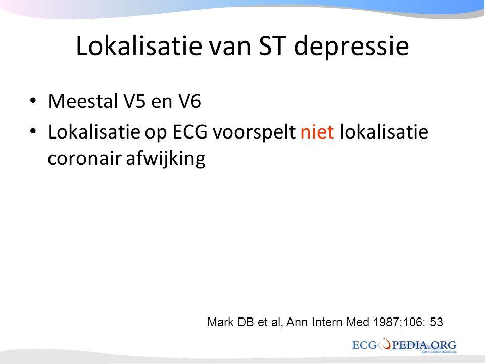 Lokalisatie van ST depressie • Meestal V5 en V6 • Lokalisatie op ECG voorspelt niet lokalisatie coronair afwijking Mark DB et al, Ann Intern Med 1987;
