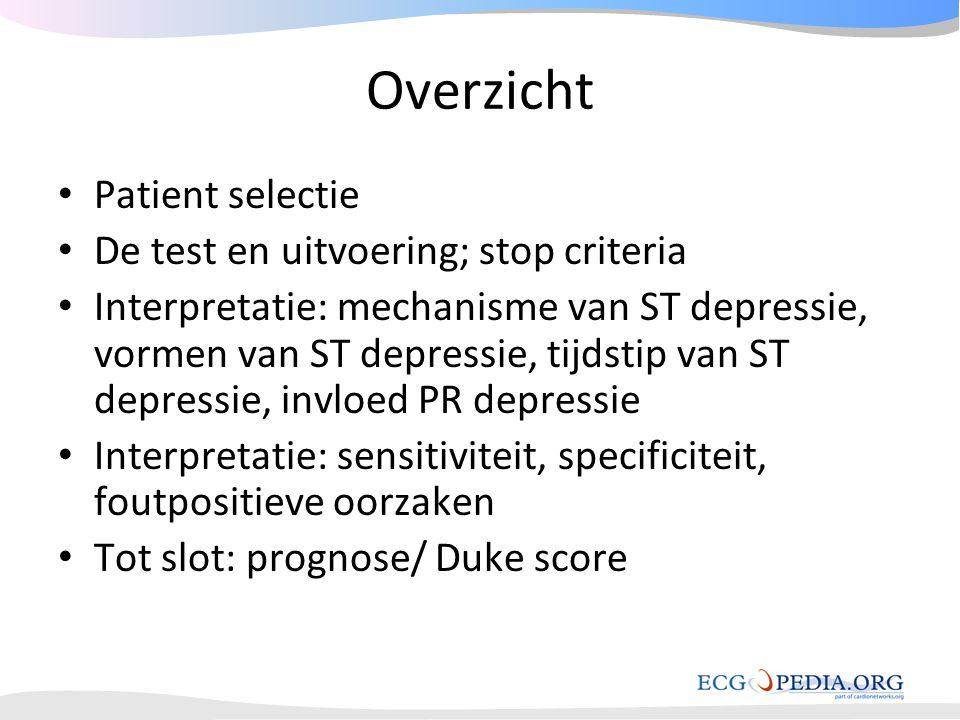 Overzicht • Patient selectie • De test en uitvoering; stop criteria • Interpretatie: mechanisme van ST depressie, vormen van ST depressie, tijdstip va