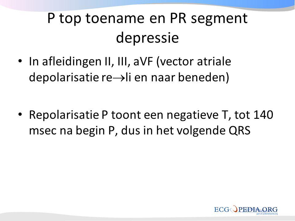 P top toename en PR segment depressie • In afleidingen II, III, aVF (vector atriale depolarisatie re  li en naar beneden) • Repolarisatie P toont een
