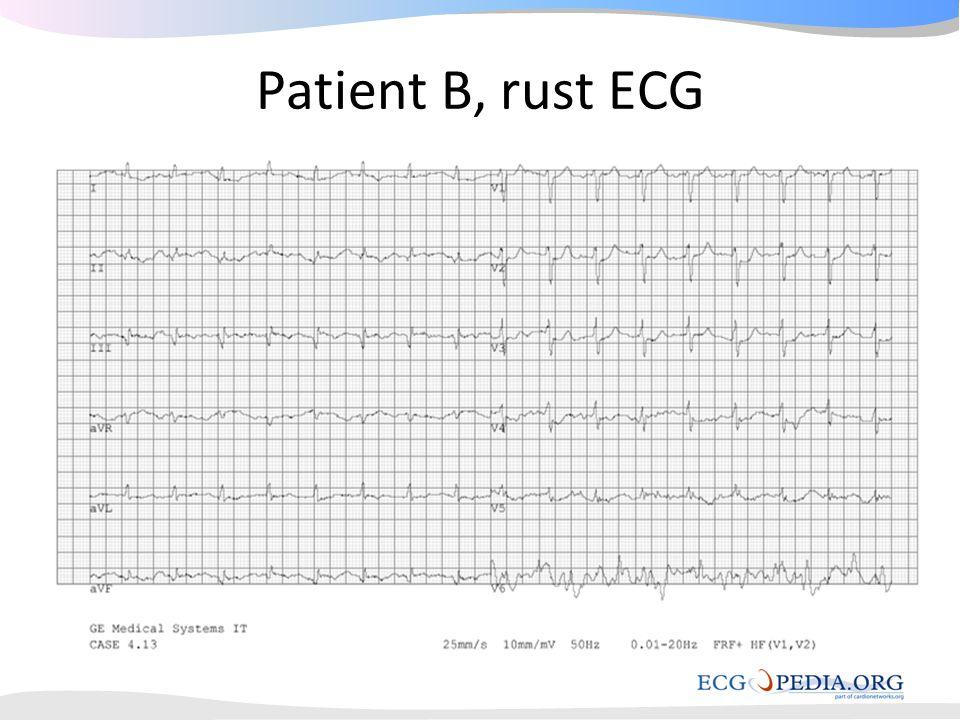 Patient B, rust ECG
