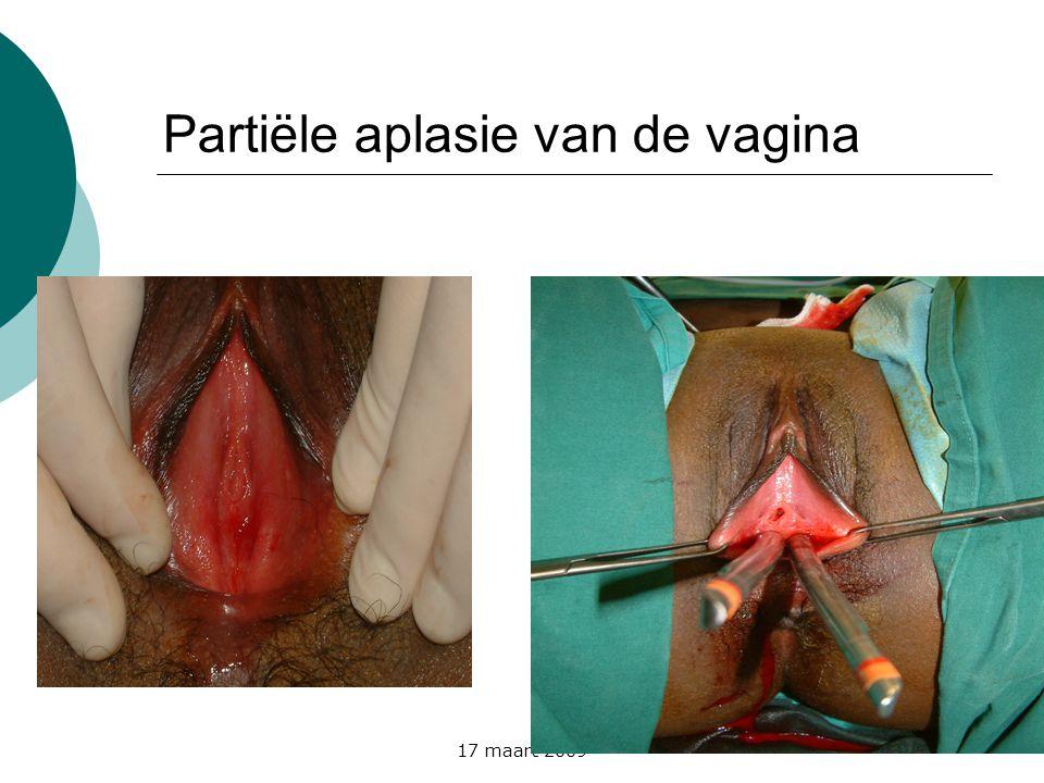 17 maart 2009 Partiële aplasie van de vagina