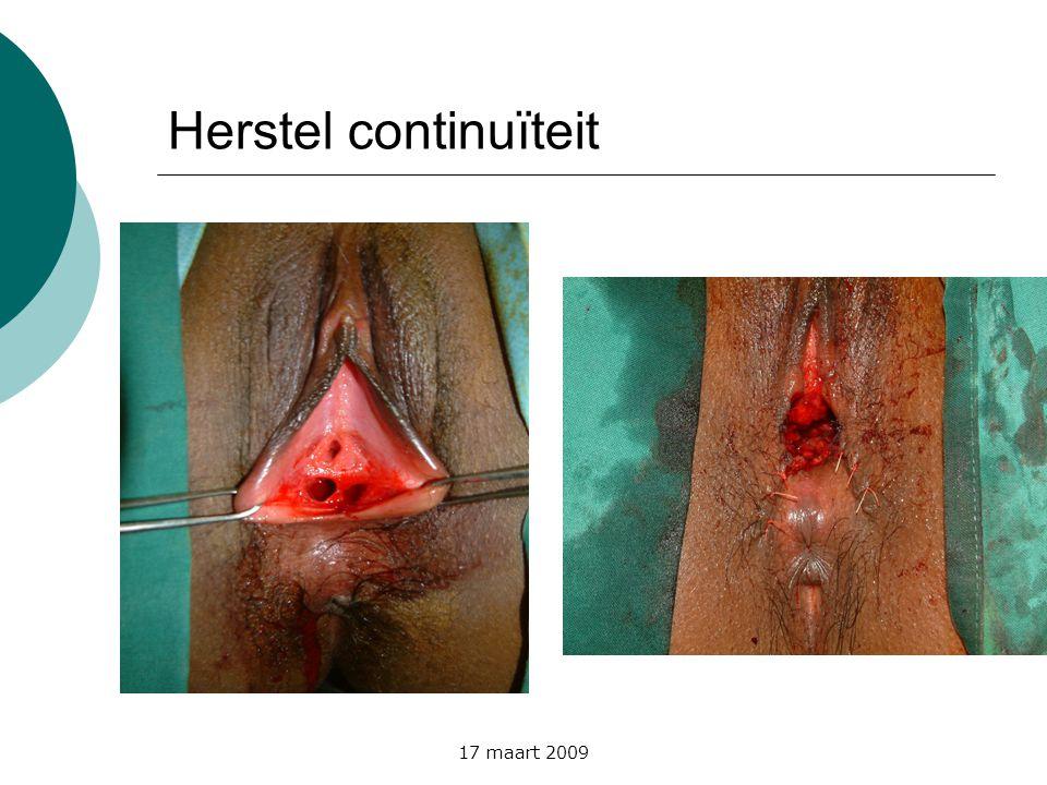 17 maart 2009 Herstel continuïteit