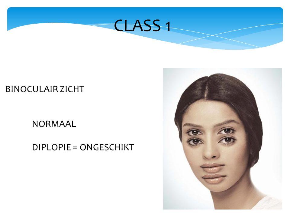 CLASS 1 BINOCULAIR ZICHT NORMAAL DIPLOPIE = ONGESCHIKT